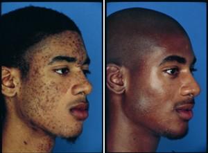 Peeling peau noire avant après : des résultats incroyables