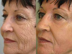 Résultats avant après un peeling profond du visage